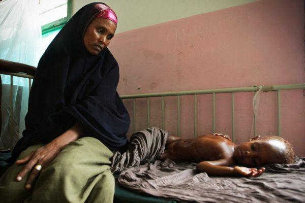 Malnourished Child Awaits Treatment at Mogadishu Hospital.